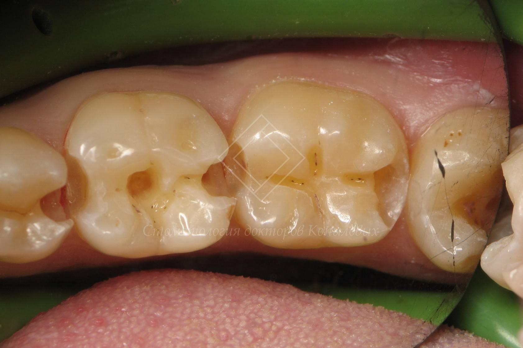 Все зубы поражает кариес что делать