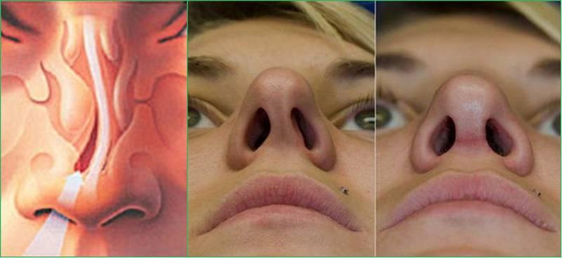 Воспаление после операций в полости носа и околоносовых пазухах: необходимость медикаментозного регулирования