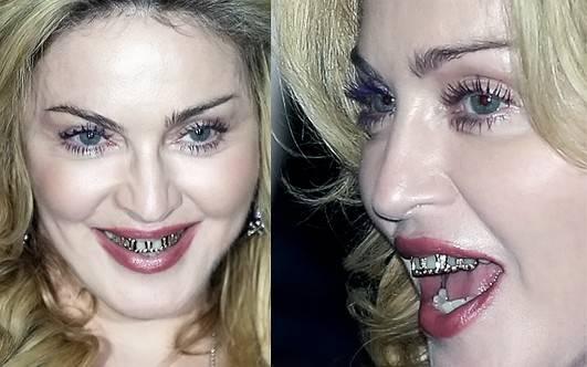 Диастема – щель между передними зубами. диастема у взрослых