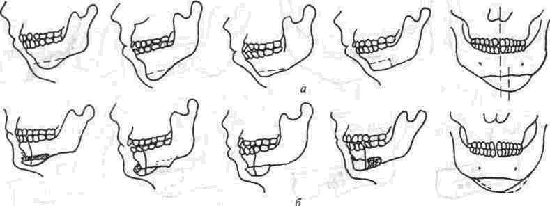 Аномалии развития и деформации челюстей. деформации верхней и нижней челюсти