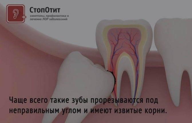 Можно ли удалять и лечить зуб во время месячных