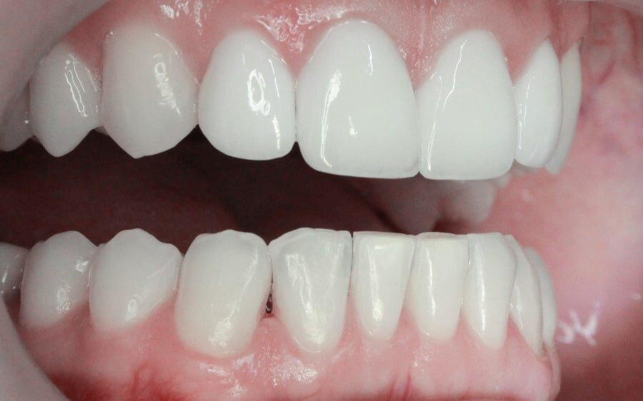 Что лучше: виниры или реставрация зубов