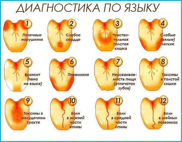 Желтый налет на языке: причины и лечение