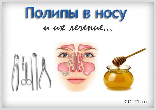 Как избавиться от полипов в носу в домашних условиях – 5 эффективных методов лечения народными средствами