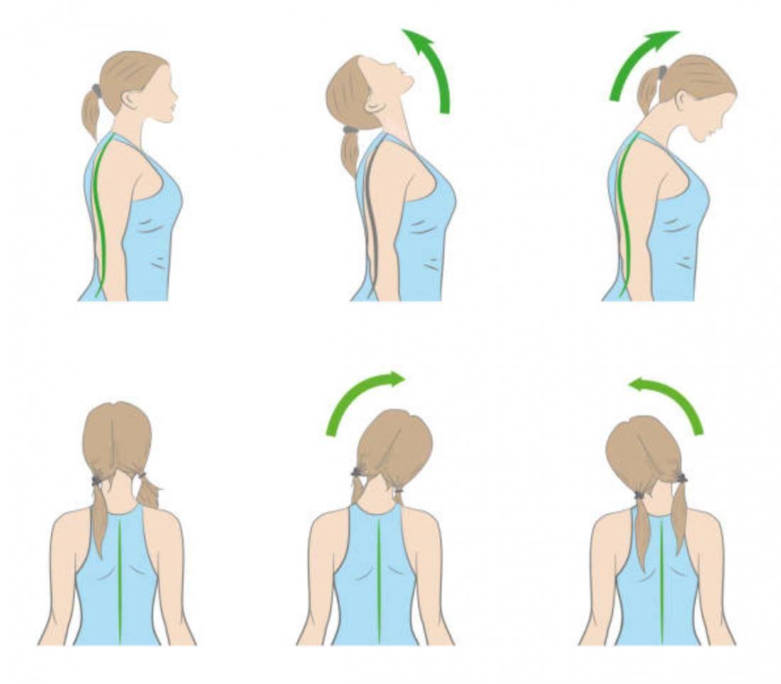 Новая процедура: избавление от «холки» («вдовий горбик») на шее