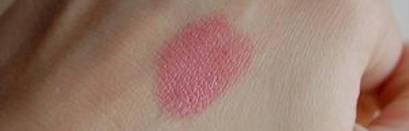 О чем говорят красные шелушащиеся пятна на лице: методы лечения и профилактики
