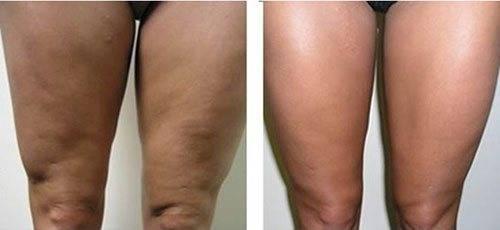 Что нужно знать об уколах для похудения: обзор эффективных препаратов, особенности их введения