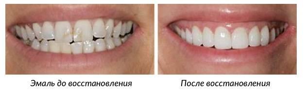Восстановление эмали зубов: методы восстановления зубной эмали