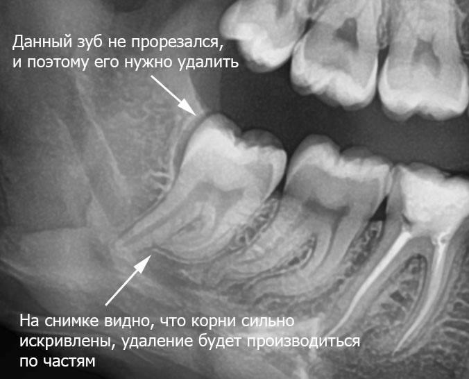 Что такое экзостоз в стоматологии: костный нарост на десне. как происходит удаление