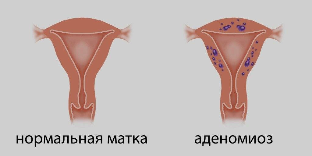Эндометриоз матки при климаксе: симптомы