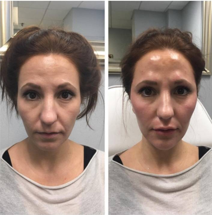 Препарат sculptra (скульптра) - мнение врача косметолога
