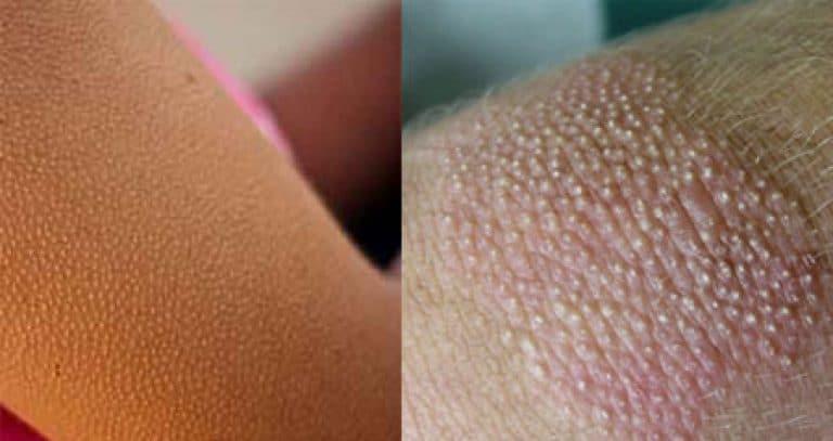 Гусиная кожа на попе: основные причины и способы избавиться