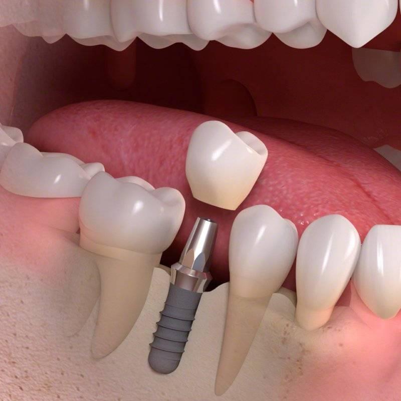 Каковы симптомы отторжения импланта зуба