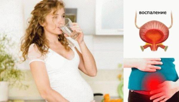 Острый цистит у женщин и основные признаки