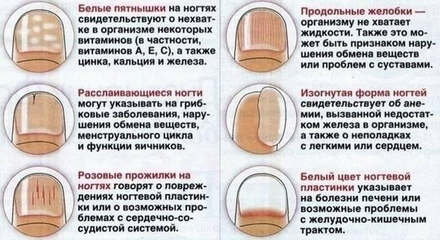 Слоятся ногти на руках: что делать и какие витамины пить – причины и лечение в домашних условиях