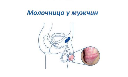 Молочница у женщин: симптомы, лечение, профилактика