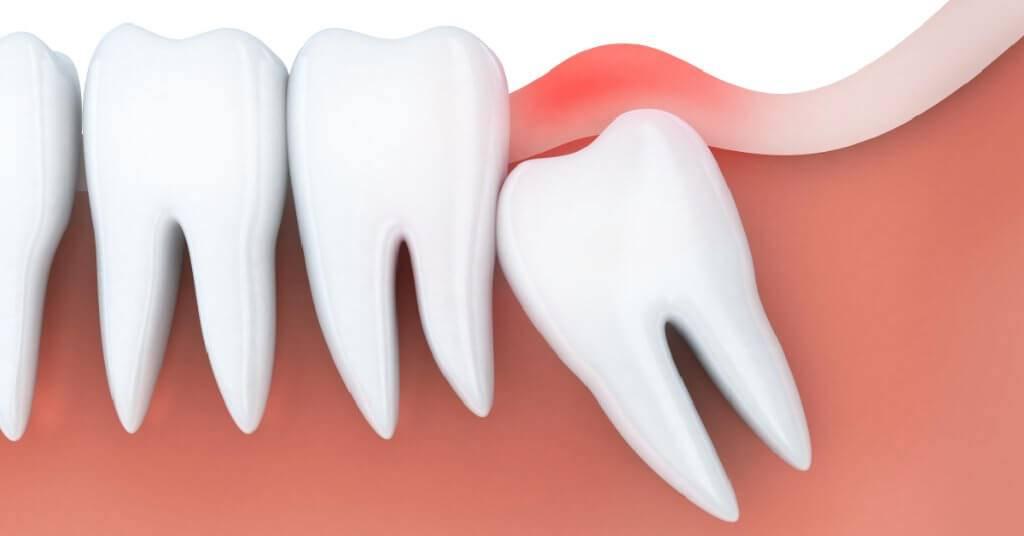 Возможно ли проводить лечение зубов или их удаление при менструации?