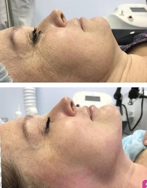 Криомезотерапия — одна из лучших омолаживающих методик в косметологии