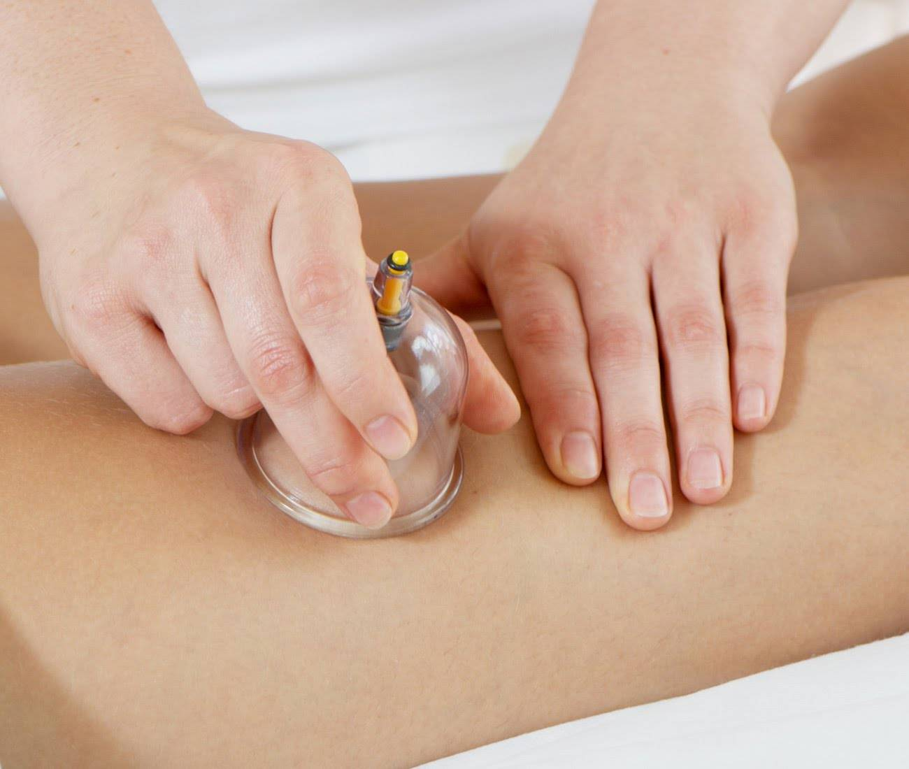 Вакуумный (баночный) массаж для похудения
