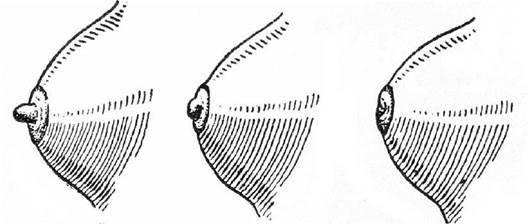 Втянут сосок— это норма или признак болезни у женщин?