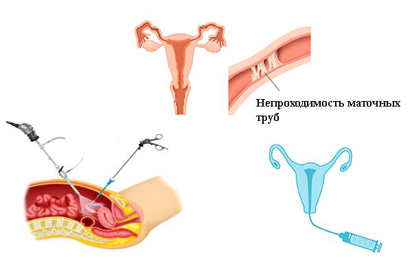 Можно ли проверить проходимость маточных труб при кисте