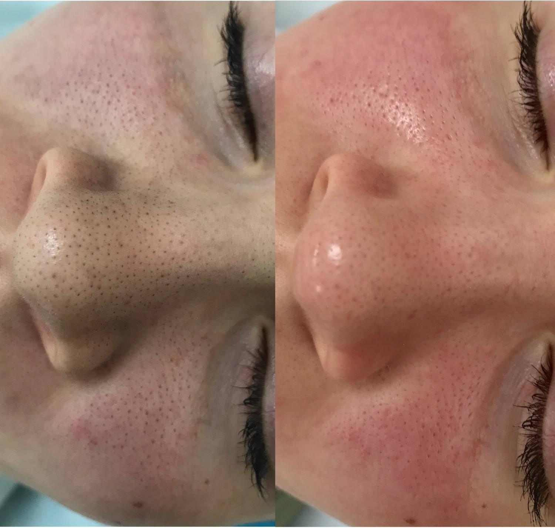 Лазерная шлифовка лица co2 — что нужно знать о процедуре