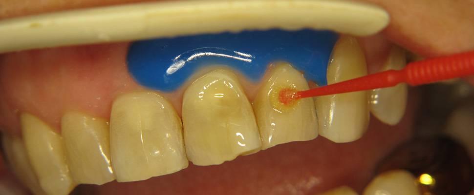 Что такое эрозия эмали зубов и как ее побороть?