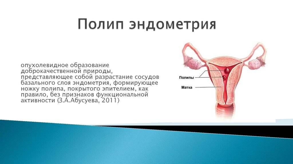 Доброкачественные образования матки: миома, полип и киста — основные характеристики