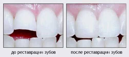 7 интересных примет про зубы