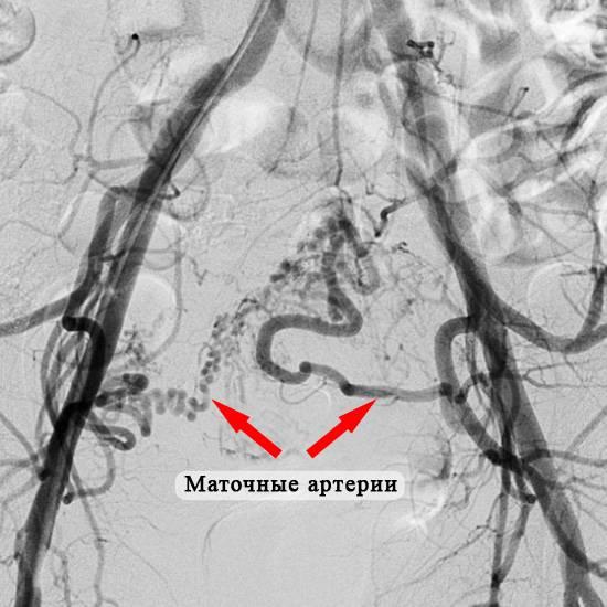Эмболизация маточных артерий, как современный метод лечения миомы матки у женщин