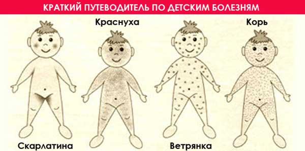 детская сыпь