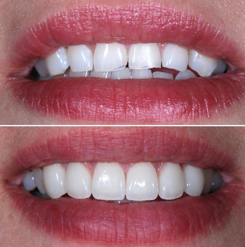 Всё о металлокерамике на передние зубы: от показаний к установке до финального результата