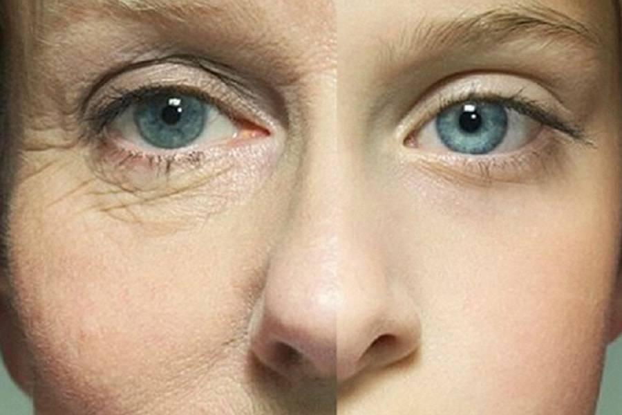 Морщины на лице и шее