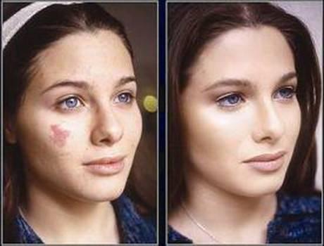 Родимое пятно на лице: как можно вывести новообразование