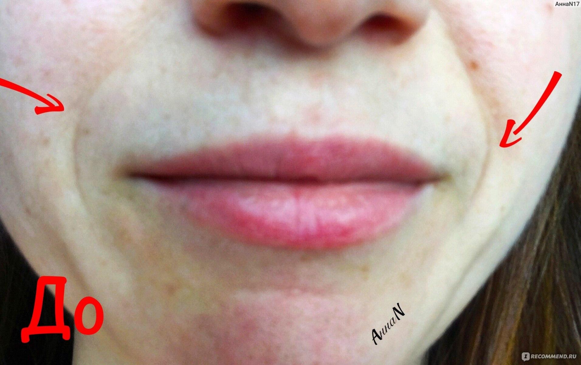 Методы лечения фиброза, вызванного гиалуроновой кислотой