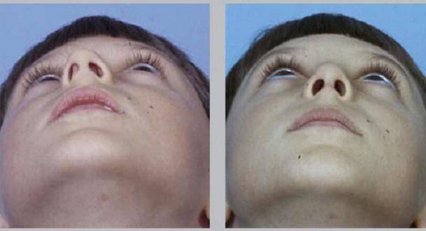Как промывать нос после септопластики