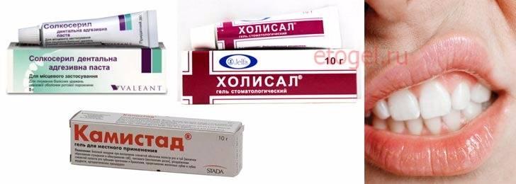 Лучшие аптечные и народные средства от стоматита во рту для взрослых и детей