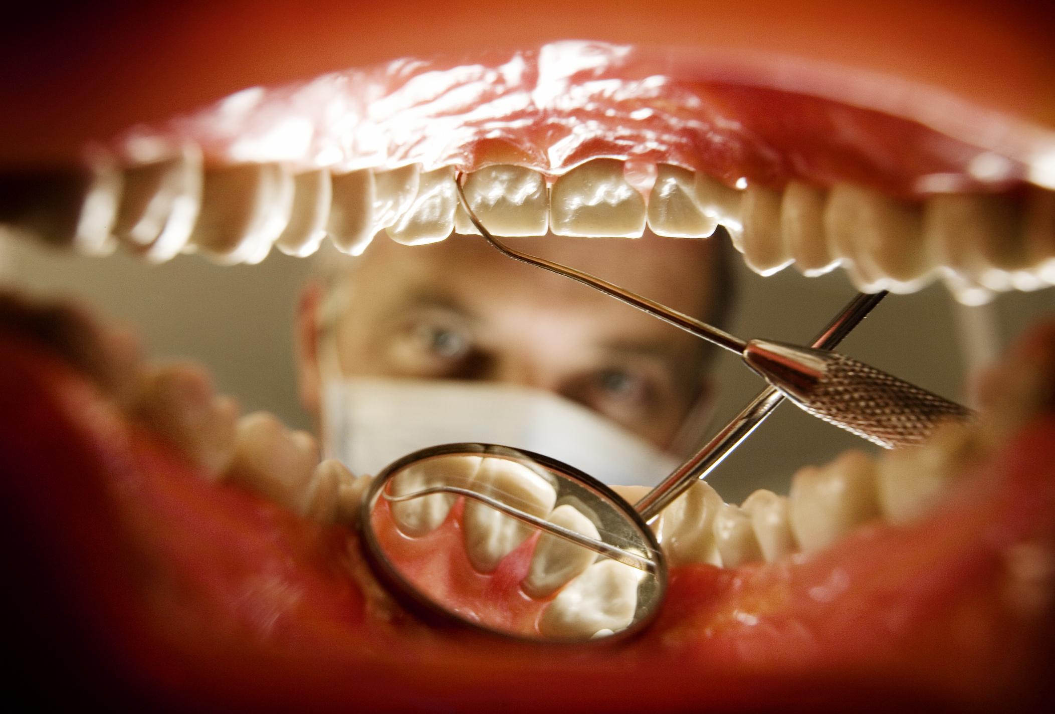 Курение и зубы: можно ли курить после удаления зуба и пломбирования