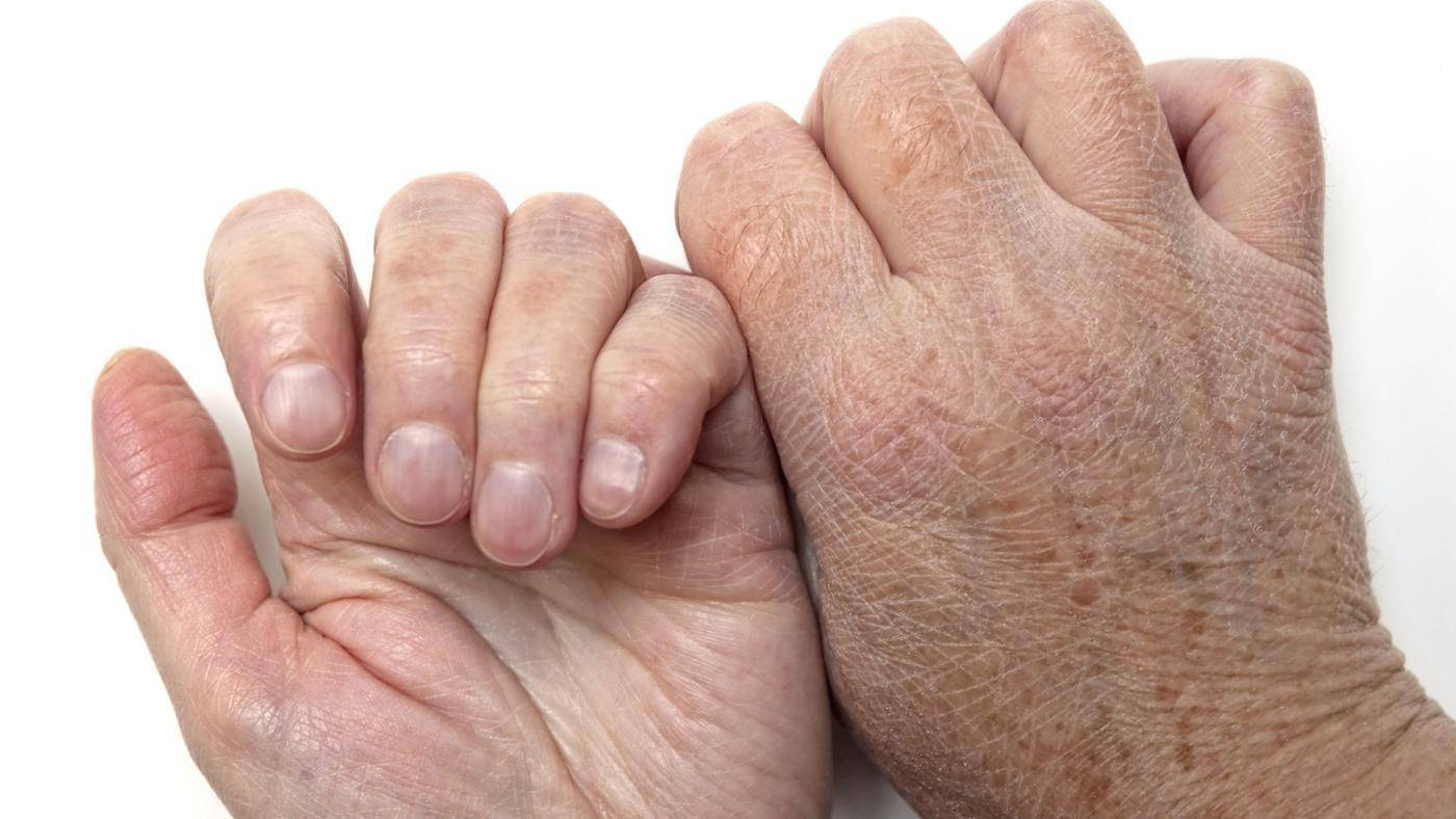 Сухие локти – почему шелушатся и трескаются у женщин, что делать, если сохнет кожа – причины и лечение