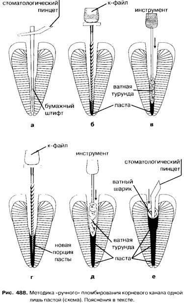 Задачи и методы обтурации корневых каналов в современной стоматологии