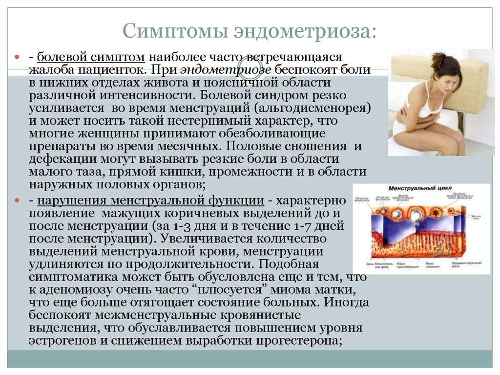 Эндометриоз: игра на опережение. симптомы и лечение эндометриоза как одной из причин бесплодия