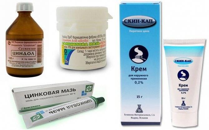 Причины и лечение себорейного дерматита, фото