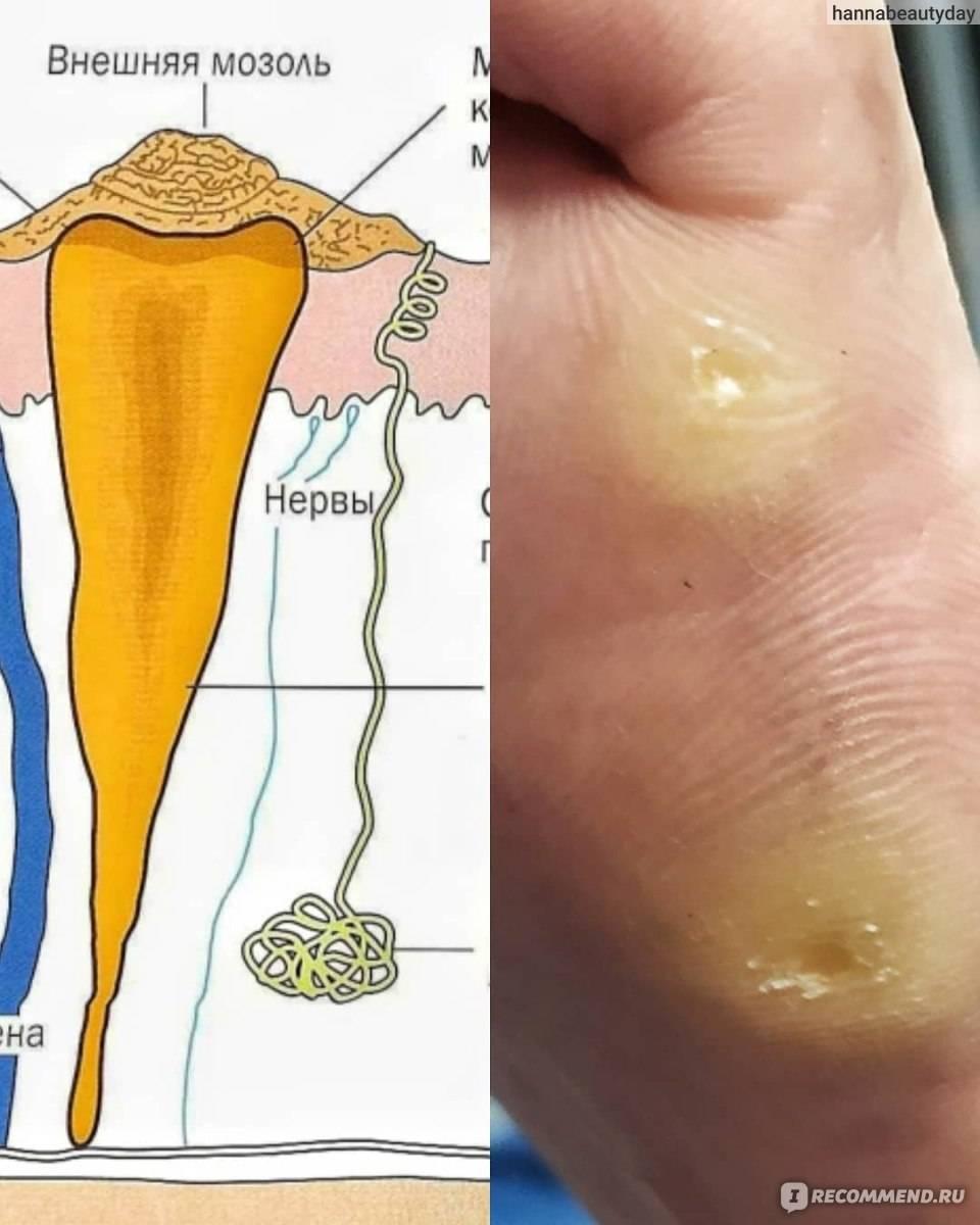 Как убрать сухие мозоли на пальцах ног: удаляем правильно