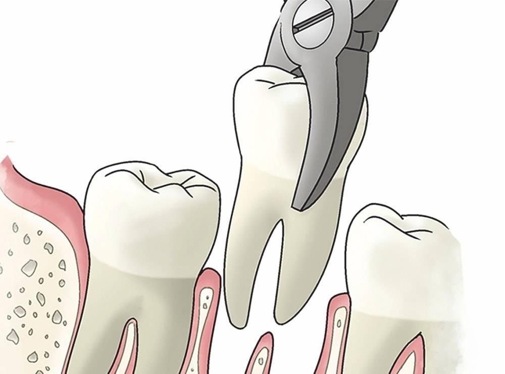 Что делать, если после удаления зуба торчит кость из десны