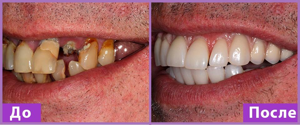 Боль после имплантации зубов