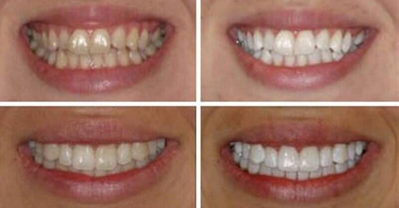 Разрешено ли после снятия брекетов отбеливание зубов, можно ли отбелить единицы в домашних условиях?