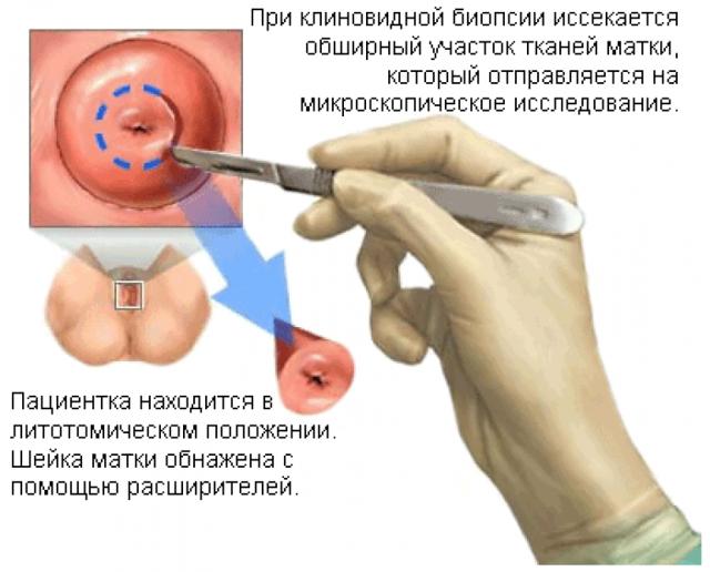 Конизация шейки матки: показания, виды и проведение, восстановление после