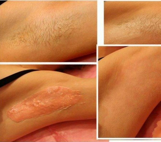 Отличие эпиляции глубокого бикини от классической бритвы: плюсы и минусы процедуры