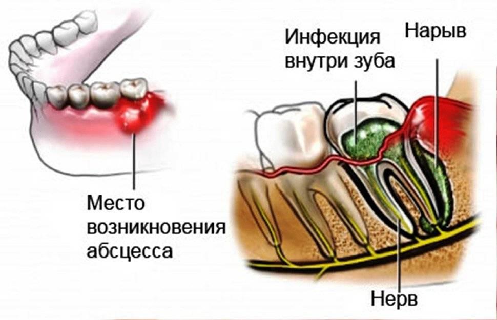 Симптомы и лечение абсцесса зуба