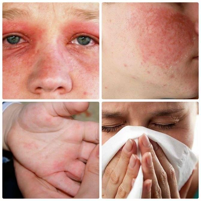Аллергия на гиалуроновую кислоту симптомы фото